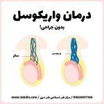 درمان واریکوسل در طب سنتی اسلامی بدون جراحی نی نی سایت گرید